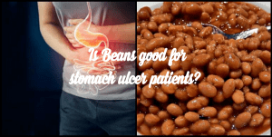Is Beans Good for Ulcer Patient? What about moin moin or Akara?
