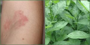 Can bitter leaf cure eczema?