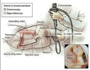 Cost of colonoscopy in Ghana