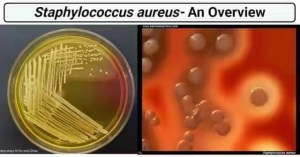 How to treat Staphylococcus in Nigeria