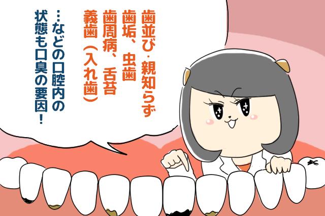歯並び・親知らず・歯垢・虫歯・歯周病・舌苔・義歯(入れ歯)などの口腔内の状態も口臭の要因!