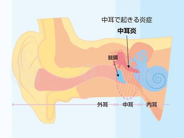 中耳炎の耳の状態画像