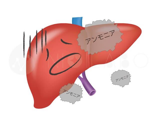 肝臓とアンモニア臭のイラスト
