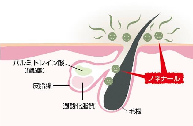 皮脂腺から分泌されたパルミトレイン酸(9ヘキサデセン酸)と過酸化脂質が酸化して発生したノネナールが毛穴から体の外へ出ていく様子。