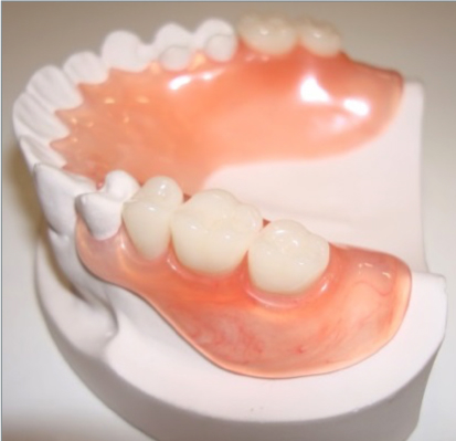 Pictures of good dentures