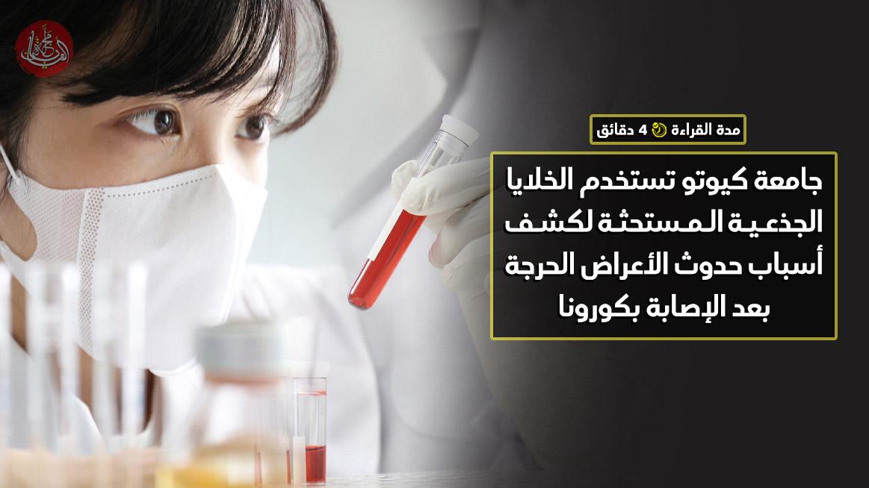 جامعة كيوتو تستخدم الخلايا الجذعية المستحثة لكشف أسباب حدوث الأعراض الحرجة بعد الإصابة بكورونا