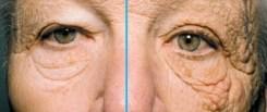 光老化について