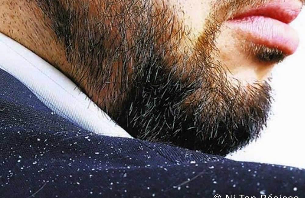Cómo acabar con la caspa en la barba