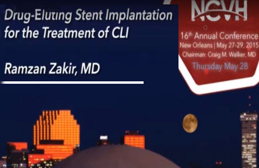 Drug-Eluting Stent Implantation For The Treatment Of CLI