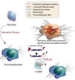text box model illustrating the role for tdis in myofibroblast transdifferentiation [ 1121 x 1137 Pixel ]
