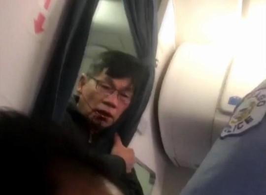 Bác sĩ Dao mặt dính máu hôm 9-4. Ảnh: CBS NEWS
