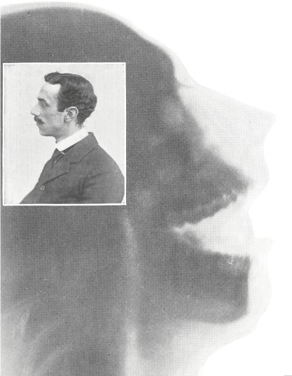 A profile portait of a man and an exray of a human head, mouth open.