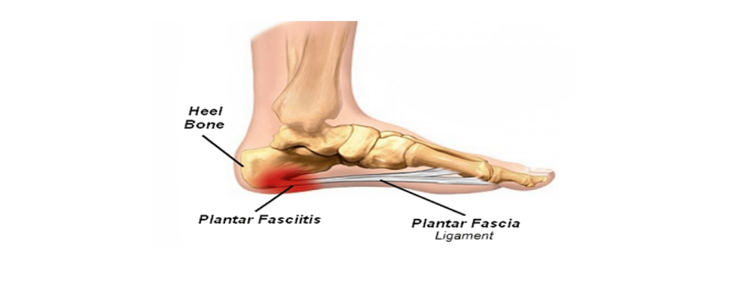 small resolution of fleet feet sports presents plantar fasciitis night