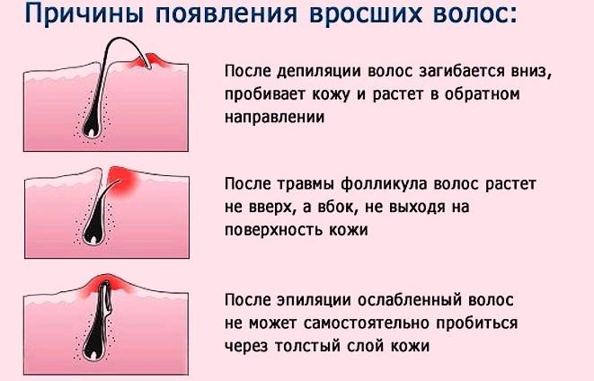 Воспаление сальной железы на половой губе