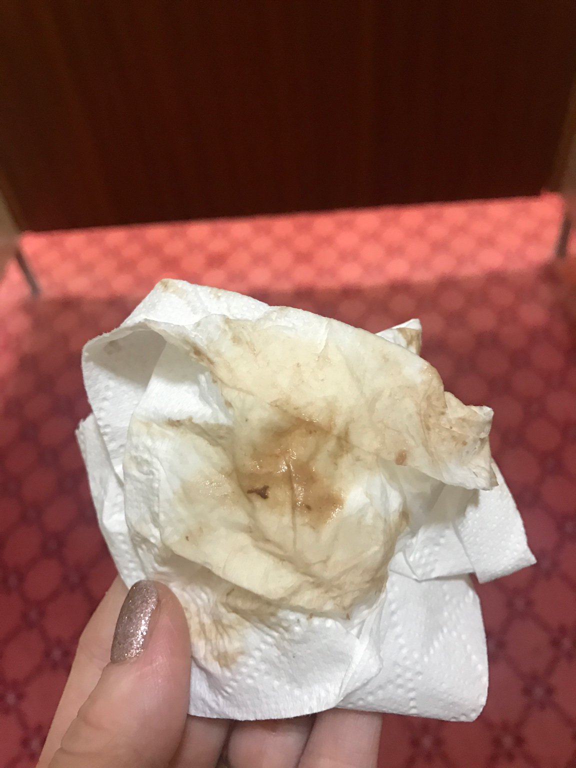 Clear Yellow Mucus Discharge 39 Weeks Pregnant ...