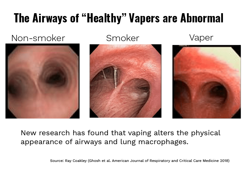 electronic cigarettes american nonsmokers
