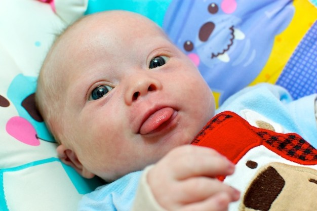 down syndrome tongue protrusion