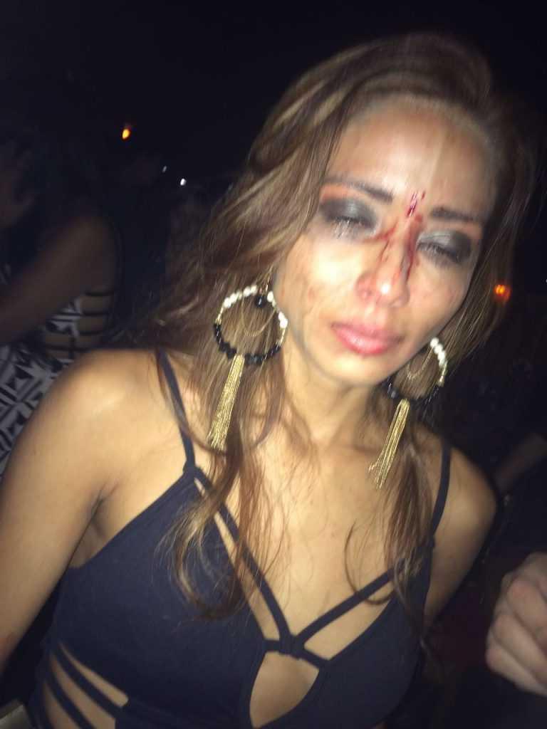 Lana Penha com o rosto ensanguentado após a agressão / Divulgação