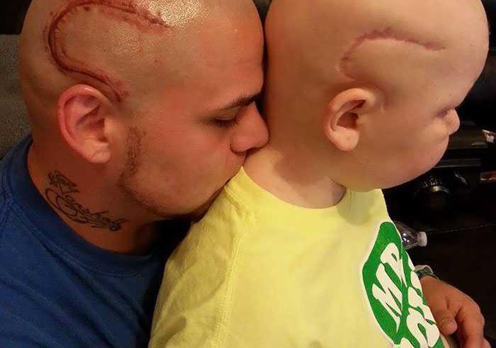 Pai faz tatuagem de cicatriz para apoiar filho diagnosticado com câncer