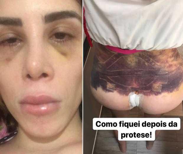 Camilla Uckers teve complicações após procedimentos estéticos feitos em dezembro - Imagem: Divulgação