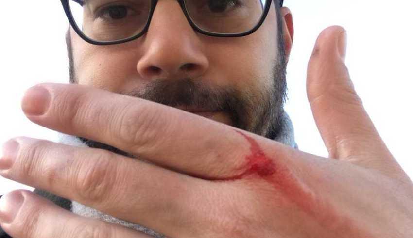 Evaristo Costa machucado / Reprodução Twitter