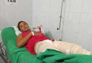 A vítima teve queimaduras de terceiro grau nas pernas e partes íntimas causadas pelo ex-marido dela. / Foto: Arquivo pessoal