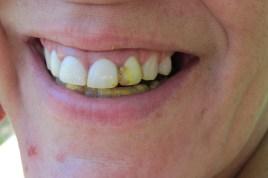 Propolis sticks to your teeth
