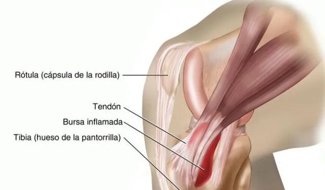tendinitis de la pata de ganso