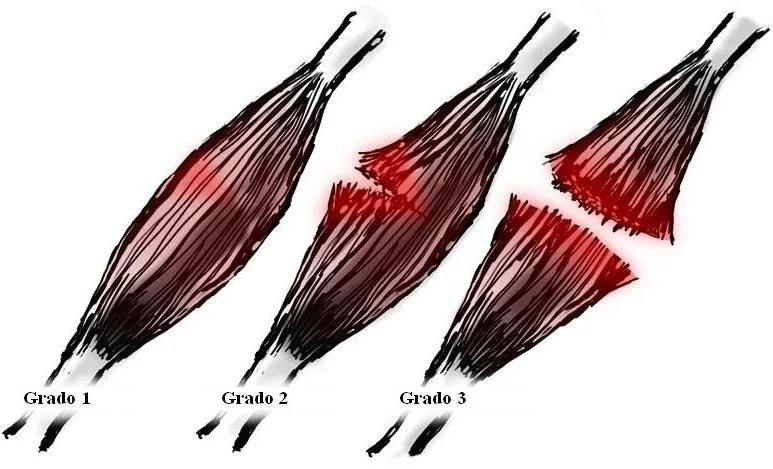 rotura de fibras grados