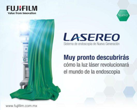 Lasereo1