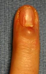 Bump Under Fingernail : under, fingernail, Ganglion, Common, Tumor, Wrist