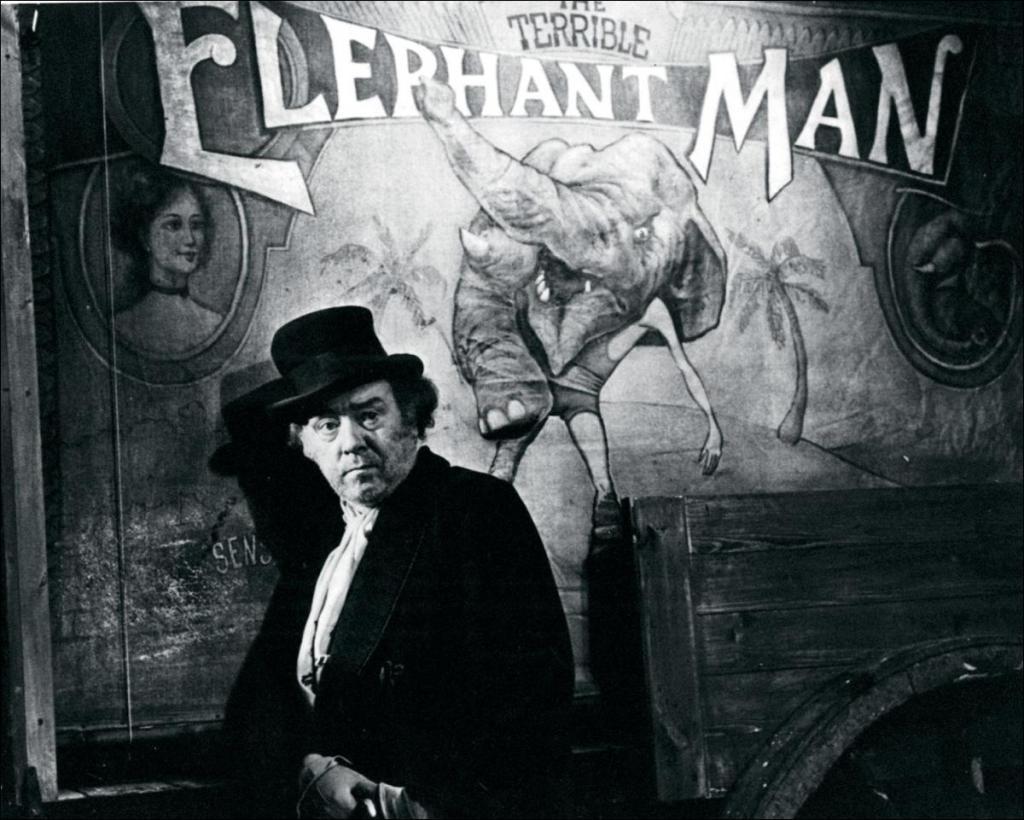 hombre-elefante