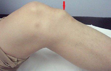 Остеохондропатия коленного сустава лечение - Лечение Суставов