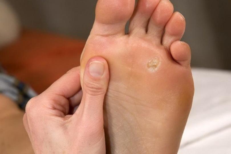 Como remover o silêncio na perna em casa?