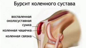 Болит сгиб ноги с внутренней стороны. Этиология боли в различных областях колена. Причины отечности коленей