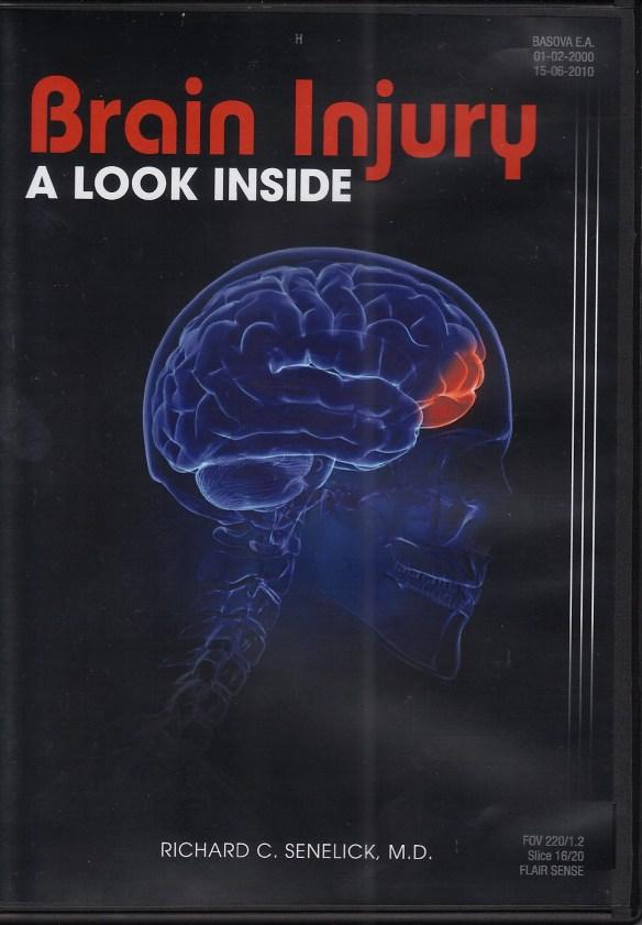 Brain Injury A Look Inside