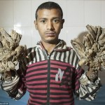 Meet The Man Suffering From A Rare Condition And Is Turning Into A Tree. (Photos) **Viewers Discretion