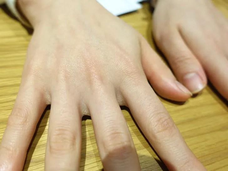 脱毛後の指と手の甲