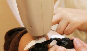 皮膚科でシミそばかすを治療する方法