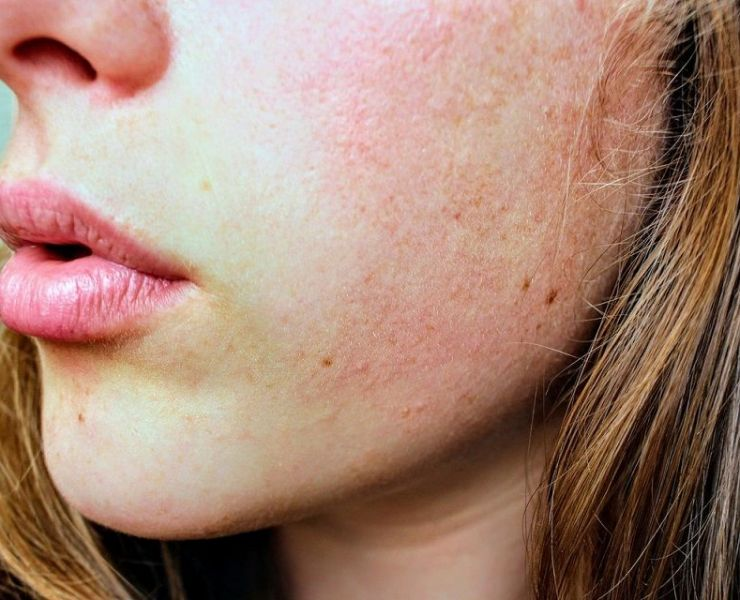 Which Foods are Good for Your Skin