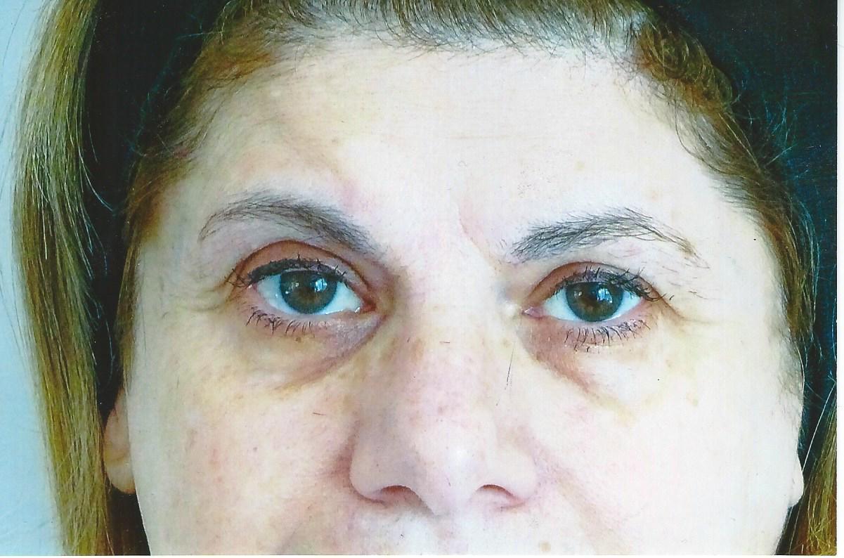 Using Rogaine Eyebrows