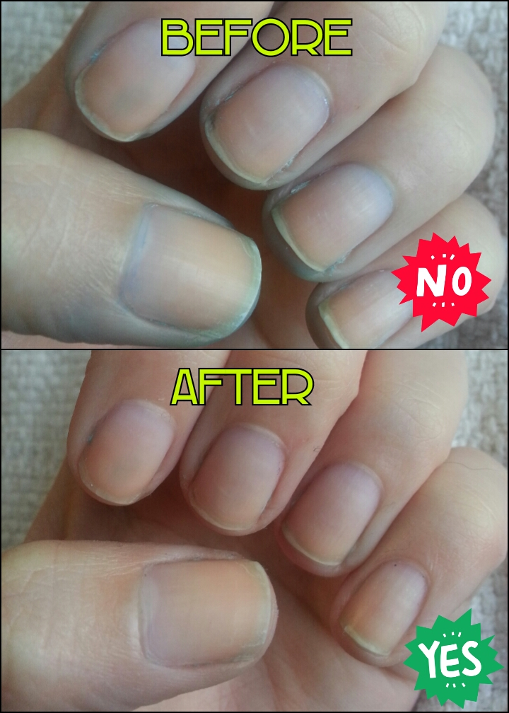 How To Clean Stained Gel Nails : clean, stained, nails, Protip:, Stained, Nails, (DIY)