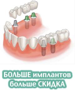 БОЛЬШЕ имплантов - больше СКИДКА - 240x288
