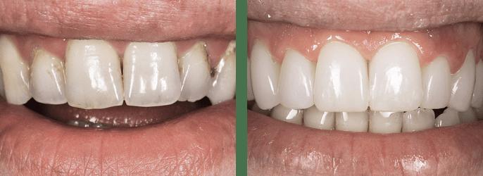 реставрация КОМПОНИРами - изменение цвета эмали, обширный пришеечный и межзубной кариес, незначительное искривление