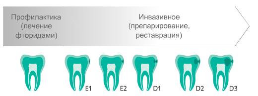 Лечения кариеса сверлением зубов до появления препарата ICON