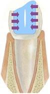 Силы действующие на стенку зуба при усадке пломбировочного материала