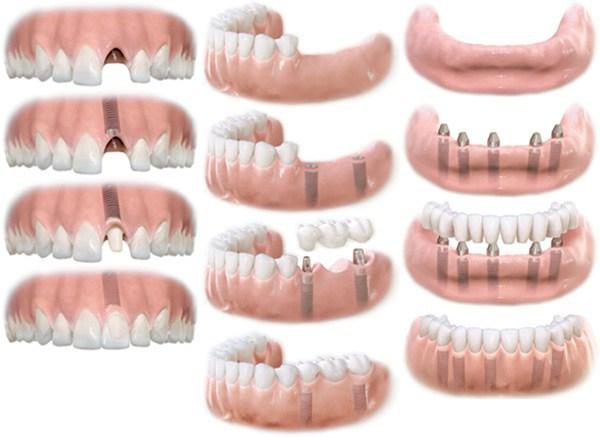 восстановление одного, нескольких и всех зубов с использованием протезирования на имплантатах