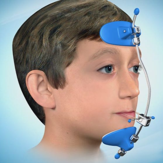 ortodonticheskie-apparaty-litsevaya-maska