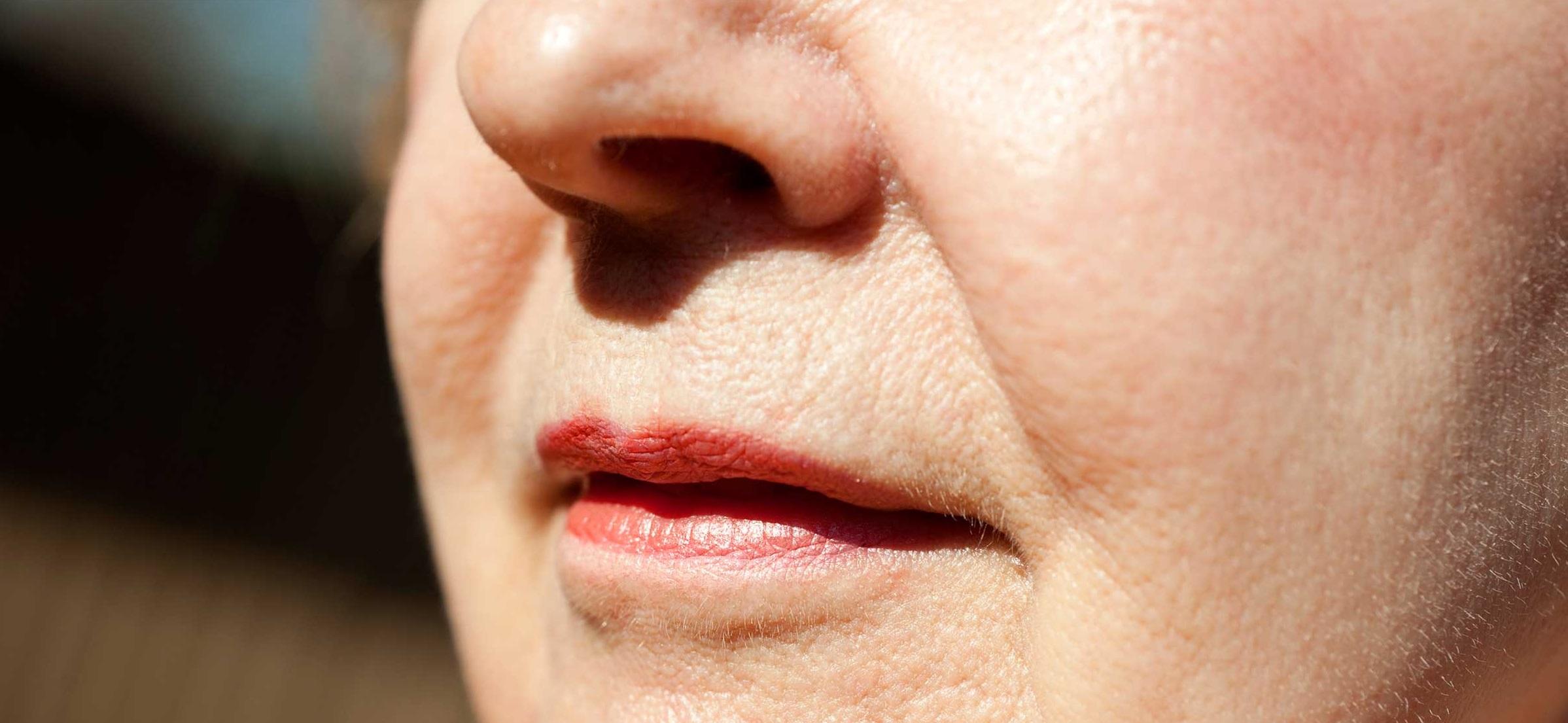 cara mengecilkan pori muka