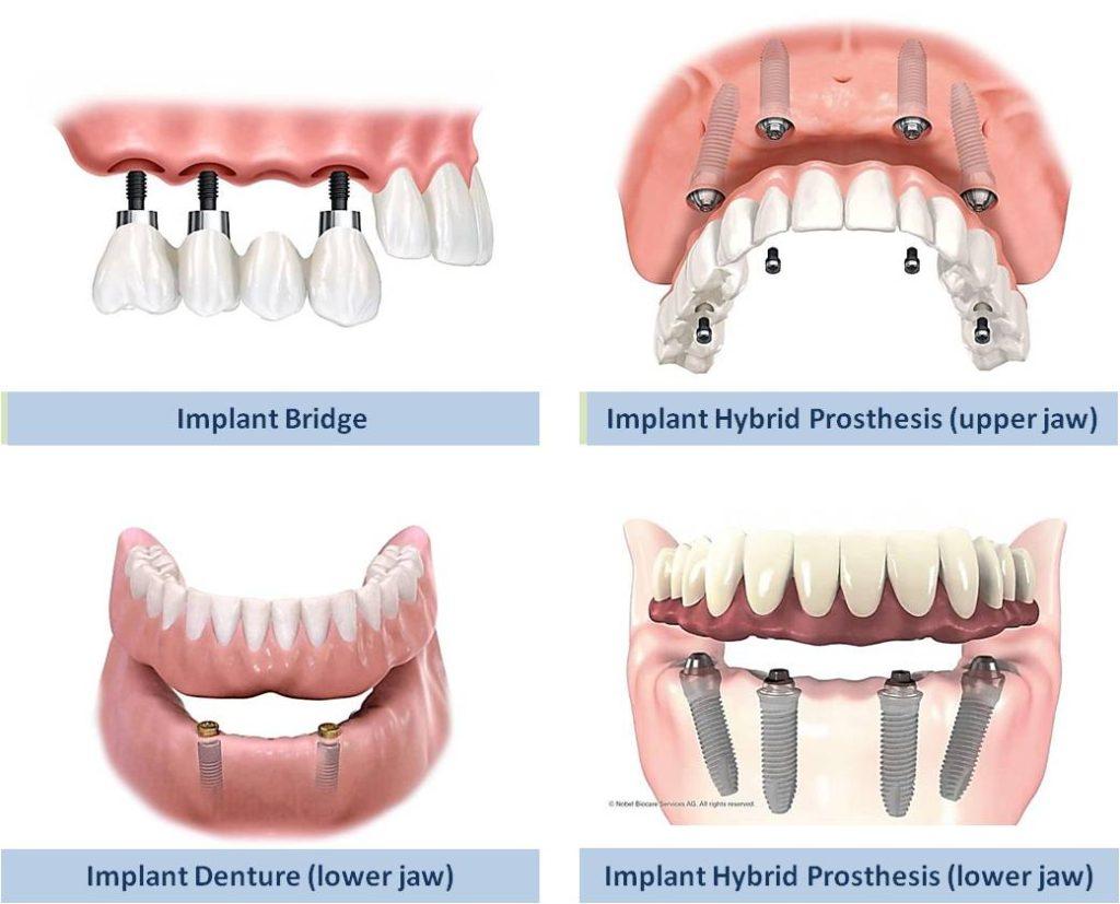 Types Of Dental Implant Restorations